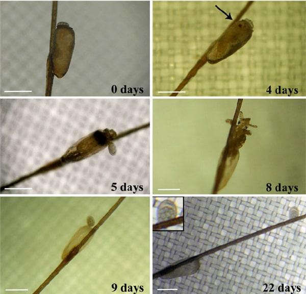 シラミの成長過程写真
